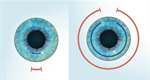 SMILE For A Gentle Solution To Laser Vision Correction