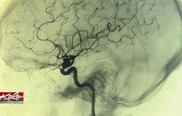 Surviving A Brain Aneurysm